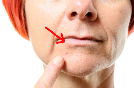labialis: Close up view on face of middle aged woman pointing to blemish surrounded by one red arrow on chin over white background Stock Photo