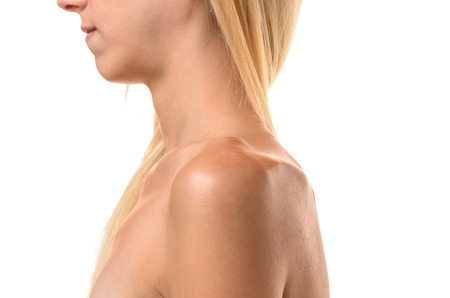 bulimia: Protruding collar bones and side view of the chin and shoulder of an undernourished thin woman isolated on white conceptual of dieting , anorexia or bulimia in a healthcare concept