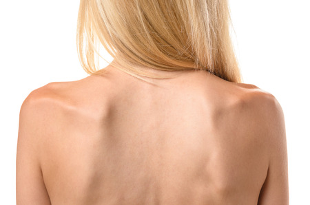 Rear view of the back of a thin woman showing the ribs and spine in a concept of healthcare and eating disorder such as anorexia or bulimia