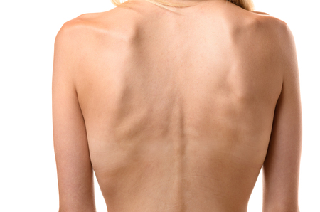 protruding: Rear view of the back of a thin woman showing the ribs and spine in a concept of healthcare and eating disorder such as anorexia or bulimia