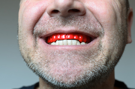 man caused: Man biting on a red bite plate in his mouth to protect his teeth at night from grinding caused by bruxism, close up view of his hand and the appliance