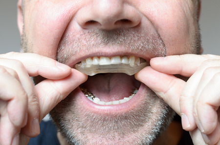 Man placing a bite plate in his mouth to protect his teeth at night from grinding caused by bruxism, close up view of his hand and the appliance Stock Photo