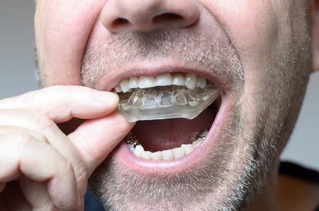 夜の研削から彼の歯を保護するために彼の口でバイト プレートを配置する男、ブラキシズムによるクローズ アップ手とアプライアンスの表示