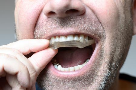 Man het plaatsen van een hapje plaat in zijn mond om zijn tanden 's nachts te beschermen tegen slijpen veroorzaakt door bruxisme, close-up van zijn hand en het apparaat Stockfoto
