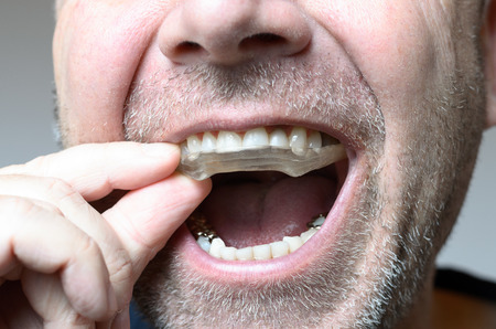 Man placing a bite plate in his mouth to protect his teeth at night from grinding caused by bruxism, close up view of his hand and the appliance Archivio Fotografico