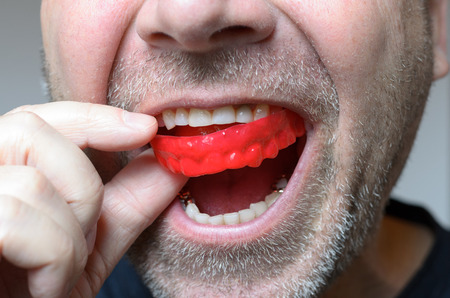 Man placing a red bite plate in his mouth to protect his teeth at night from grinding caused by bruxism, close up view of his hand and the appliance