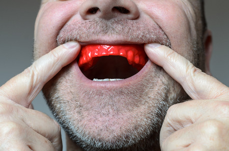 Man placing a red bite plate in his mouth to protect his teeth at night from grinding caused by bruxism, close up view of his hand and the appliance Banco de Imagens - 67569240