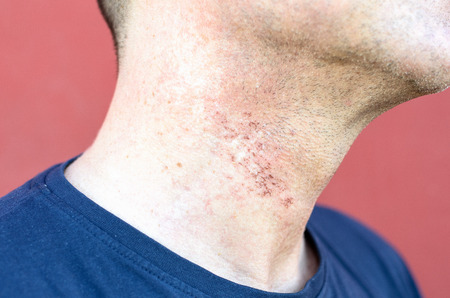 Skin irritation after cosmetic surgery close-up on mans neck