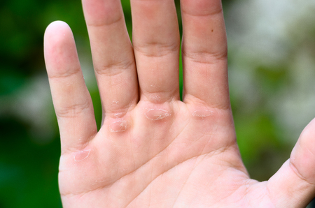Man showing his hand with callus