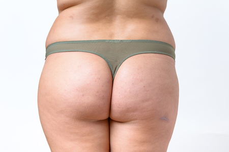 Mid section view of overweight woman bottom wearing panties isolated against white background
