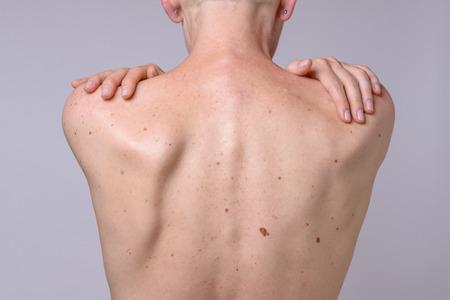 La espalda de una mujer con muchas manchas en el hígado y las manos en el hombro. Foto de archivo