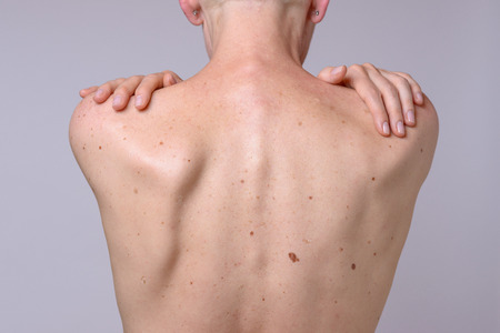 The back of a woman with many liver spots and her hands on her shoulder