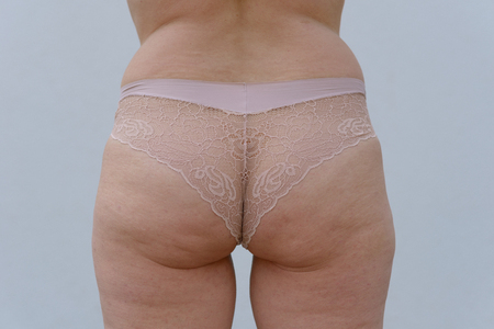 Close up on the buttocks of a slightly overweight older woman wearing sexy panties isolated on a white background