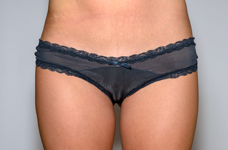 Front cropped view of a slender athletic young woman in lingerie wearing sexy black panties over a studio background