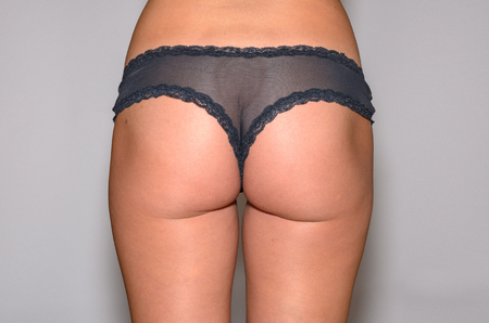 Rear view of the buttocks of a slender young woman wearing sexy black panties in a close up cropped view
