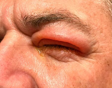 Sie view of the badly swollen upper eyelid of a man with his eye with pus and a thick discharge oozing through his closed eyelids
