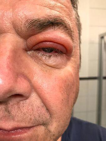 Nahaufnahme eines Mannes mit geschwollenem Oberlid und nässenden entzündeten roten Augen in einem halben Gesichtsporträt in einem Augenheilkunde-, Medizin- und Gesundheitskonzept