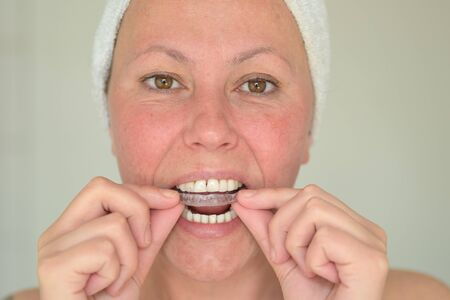 Woman with her hair wrapped in a towel suffering from bruxism fitting a mouth guard to protect her teeth from grinding at night in a close up cropped portrait