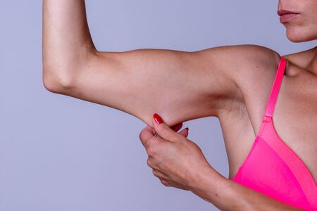 Calm young adult female pinching and stretching skin on tricep portion of bent arm Standard-Bild