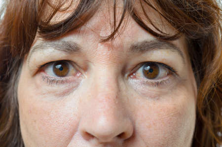 Closeup on the eyes and nose of a middle-aged brunette woman with her mouth closed and a serious expression