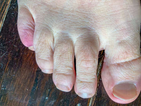 Bruised fractured little toe of a man in close up over a wooden deck