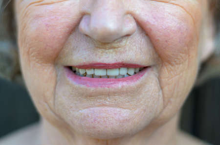 Closeup on the mouth of a senior blond woman with her mouth open