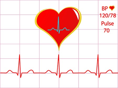 pulse trace: A healthy heart illustration with a cardiac trace showing normal sinus rhythm, blood pressure and pulse