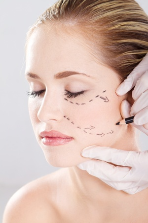 doctor draw correction lines on woman face. Before plastic surgery photo