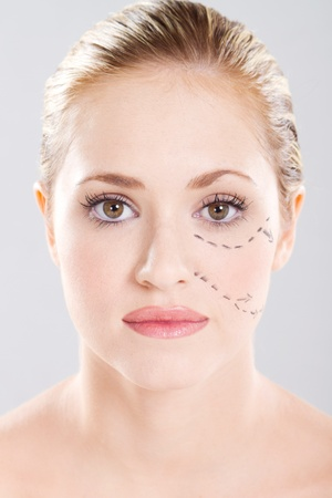 attractive caucasian woman face marked with lines for cosmetic surgery photo