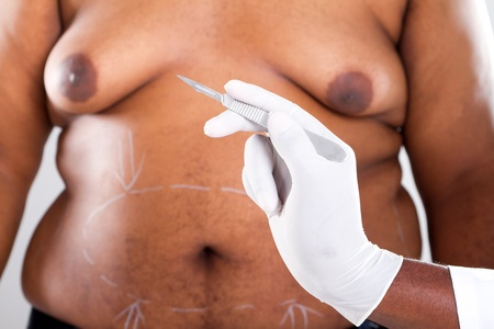 plastic surgery for overweight african american photo