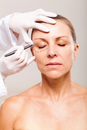 correction lines: doctor draw correction lines on senior womans face before plastic surgery