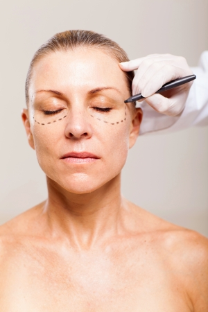 correction: beautician draw correcion line on middle aged woman face before plastic surgery operation Stock Photo