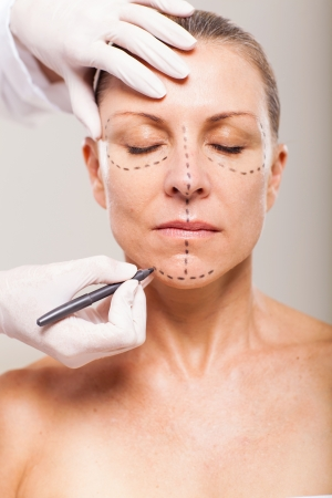 correction lines: senior woman with correction lines preparing for plastic surgery