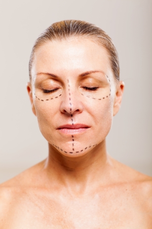 middle aged female patient with correction lines before cosmetic operation Stock Photo - 18661266