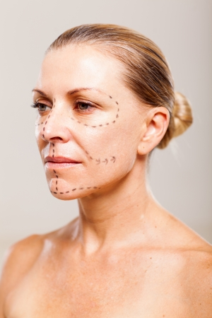 senior woman patient before plastic surgery close up Stock Photo - 18661286