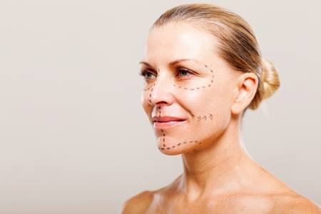 middle aged woman getting ready for plastic surgery Stock Photo - 18661233