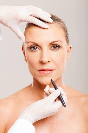 marking up: cirujano est�tico marcado ment�n mediados mujer de la edad antes de la cirug�a pl�stica