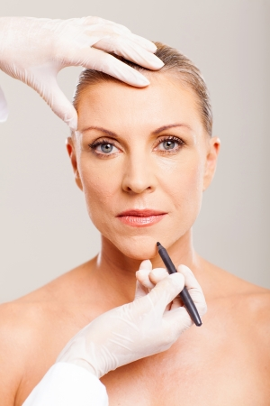 cosmetic surgeon marking mid age woman chin before plastic surgery Stock Photo - 18661268
