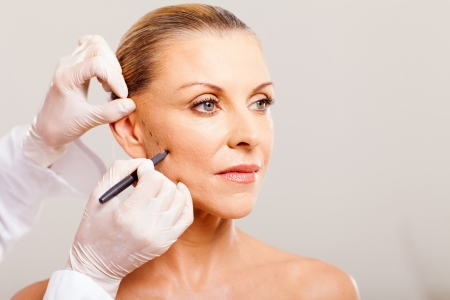 plastic surgeon: cosmetic surgeon drawing lines on senior woman face for plastic surgery close up