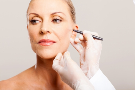 doctor drawing correcting lines on senior woman face before plastic surgery Stock Photo - 18661244