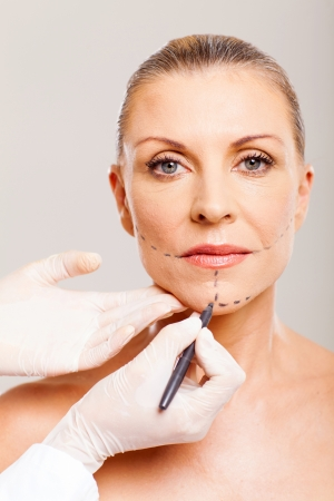 older woman with correcting lines before cosmetic surgery photo