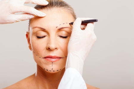 correction: senior woman with correcting marks before face lifting