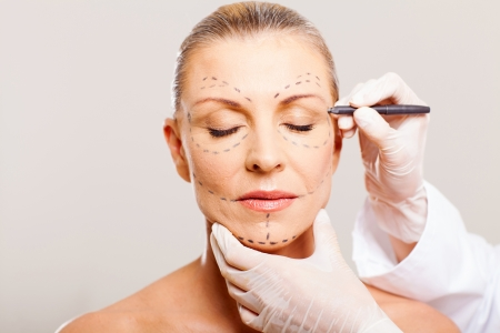 middle aged woman with correction lines before cosmetic surgery Stock Photo - 18661237