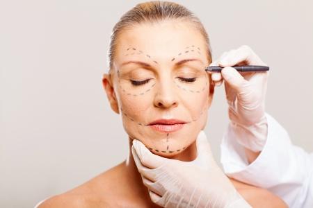 mujer de mediana edad con líneas de corrección antes de la cirugía estética