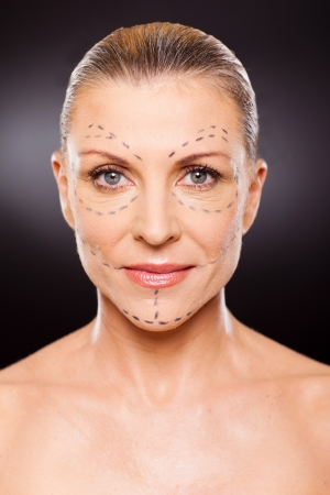 portrait of senior woman before plastic surgery close up Stock Photo - 18661261