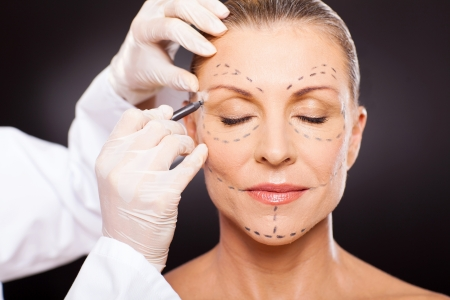 face lift: middle aged woman with correction marks preparing for plastic surgery