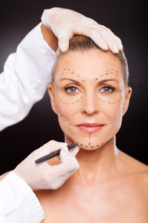 plastic surgery: doctor marking senior woman face for plastic surgery
