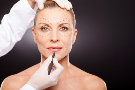 plastic surgeon: mid age woman with correction mark for plastic surgery Stock Photo