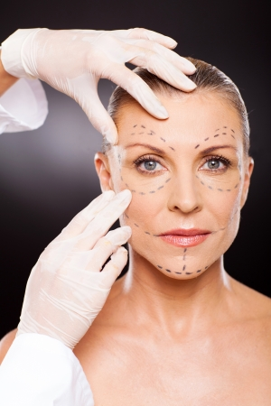 doctor hands preparing middle aged woman for face lifting surgery photo
