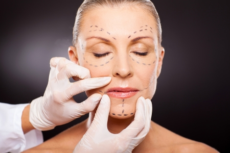 cosmetic surgery: doctor hands on mid age woman before cosmetic surgery